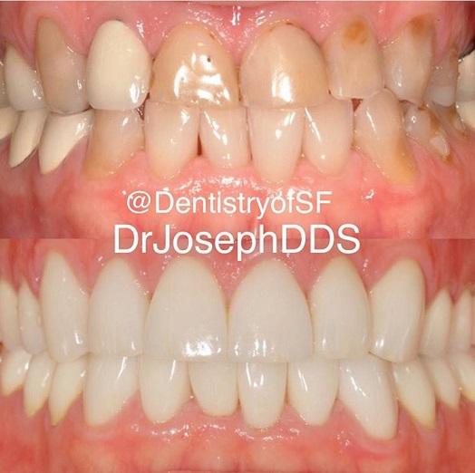 Dental Implants Other Procedures Patient Gallery