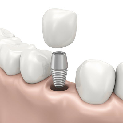 Single Crown Implant
