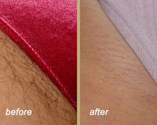 Laser Hair Removal Chevy Chase Md Skin Lrg