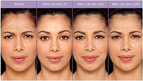 botox 24 hours after